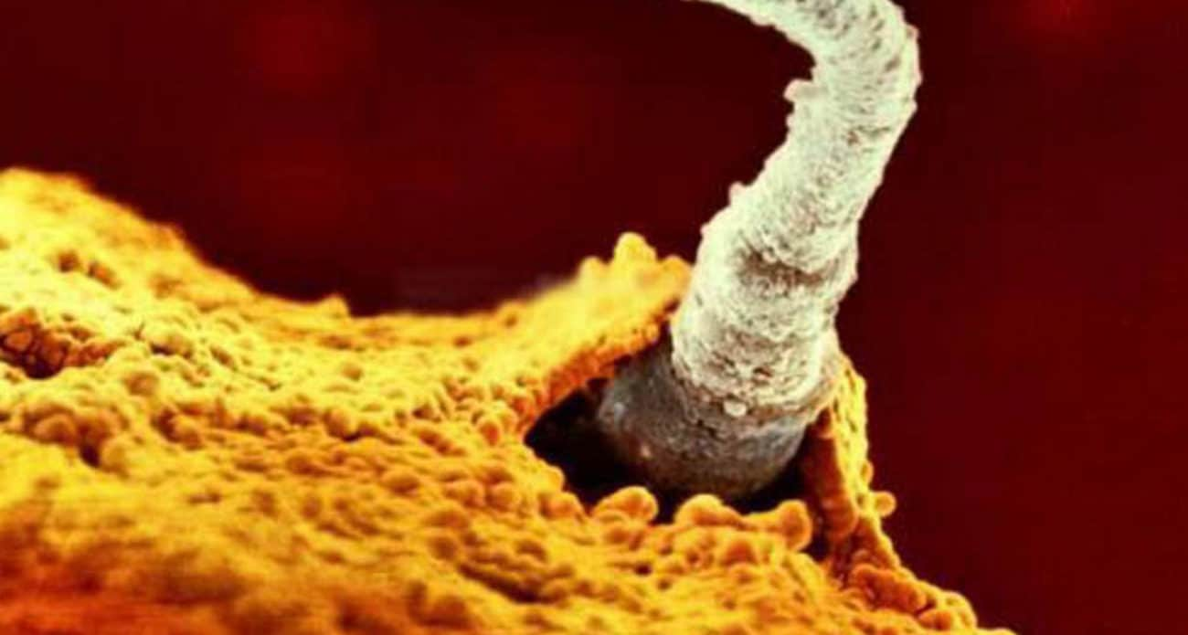 Espermatozóide Fecundando o Óvulo