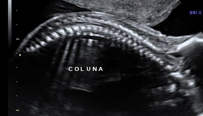 Ultrassom Coluna Fetal