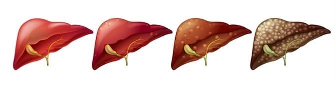 Fígado Gorduroso Agudo com diferentes graus de deposição de gordura.