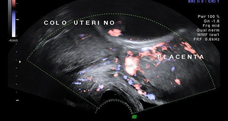 Ultrassom Placenta Prévia