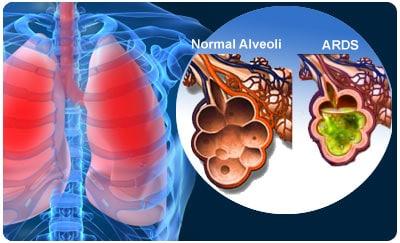 Alvéolo Pulmonar