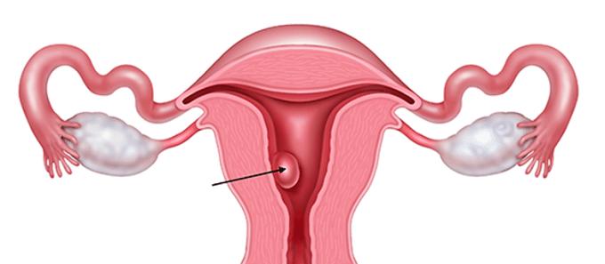 pólipo uterino
