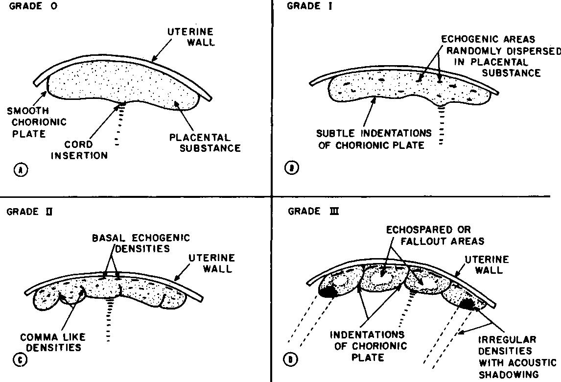 Grau da Placenta - Classificação de Grannum