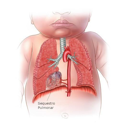 Sequestro Pulmonar