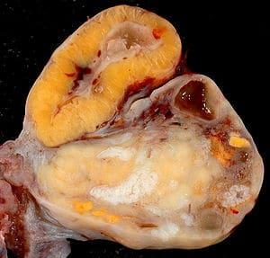 Corte macroscópico de um ovário mostrando o corpo lúteo