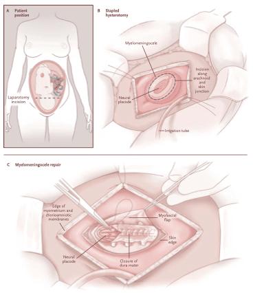 Técnica da Cirurgia do Estudo MOMS