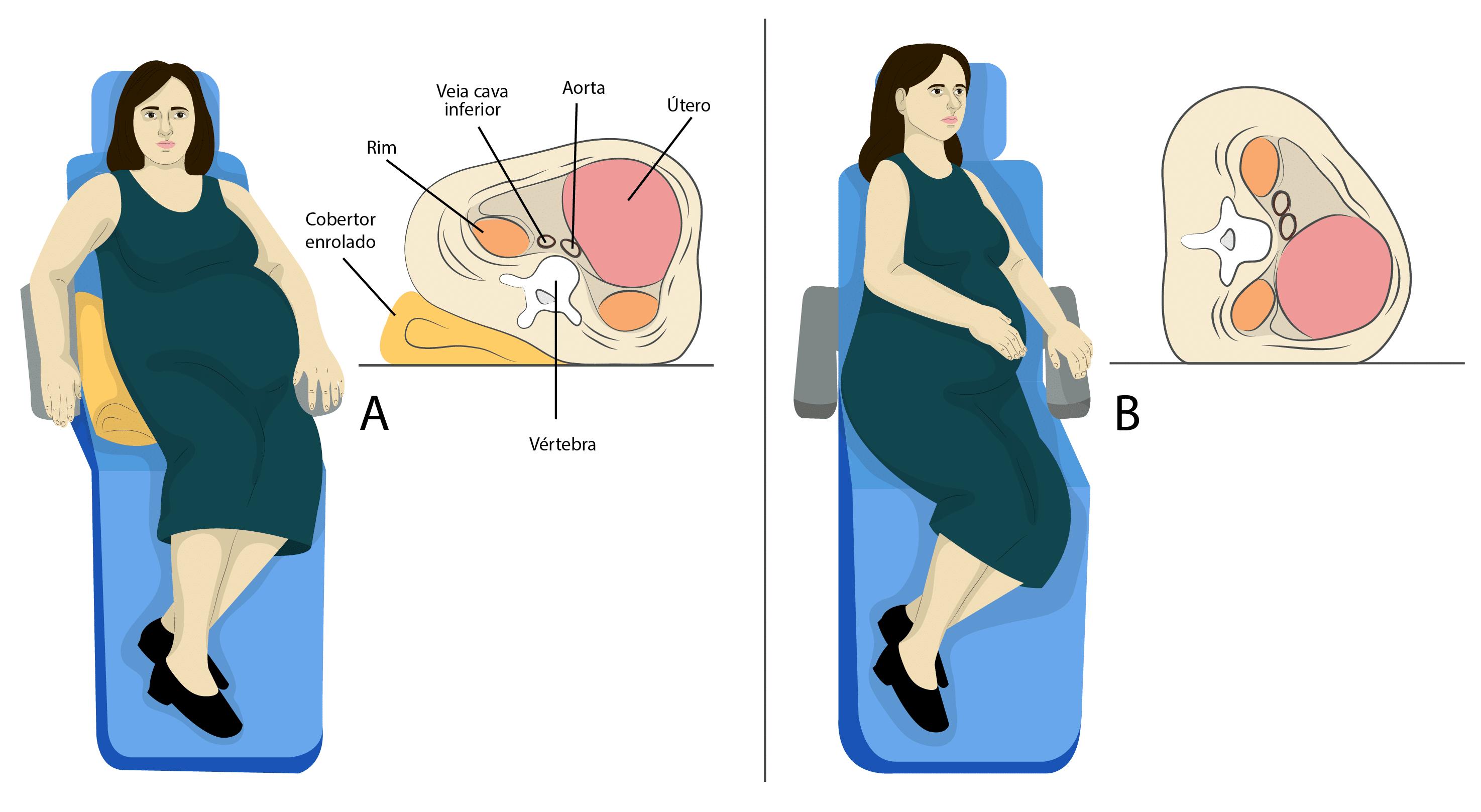 Dormir Bem - Idealmente a grávida deve virar para o lado esquerdo